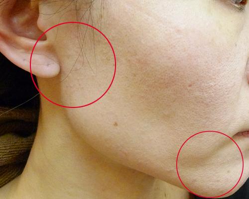にきび-リンパの近くと顎
