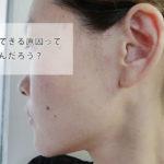39歳の肌トラブル。大人ニキビ悪化が続くので原因を考える